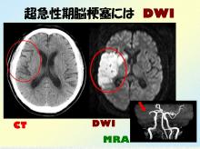 脳画像 DWI