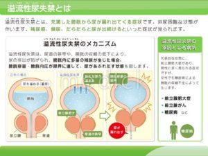 尿失禁 分類